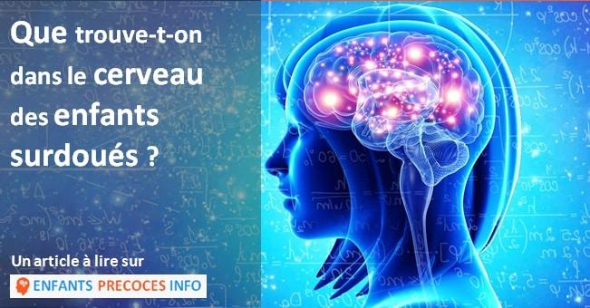 Quelles sont les particularités du développement et du fonctionnement du cerveau des personnes surdouées ? Le magazine Science & Vie lève un coin du voile.