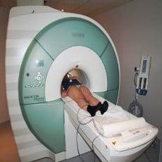 Cerveau des enfants précoces et IRM